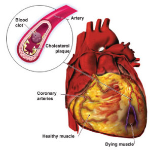 peperoncino e malattie cardiovascolari